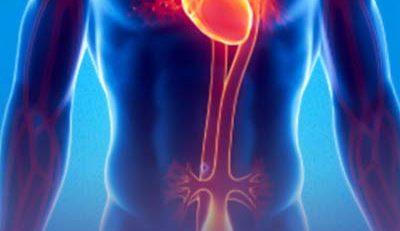 Artigo, aneurisma de aorta