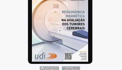 Câncer, Ressonância Magnética